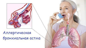 Лечение аллергической астмы и способы профилактики патологии