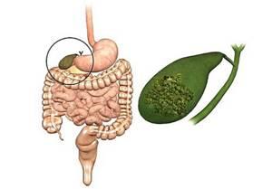 Папилломы в желчном пузыре: симптомы и методы лечения наростов