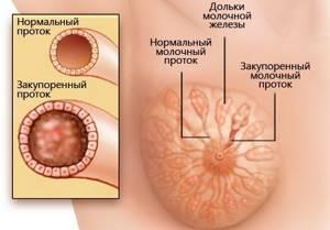 Мастопатия и беременность: течение и возможные осложнения