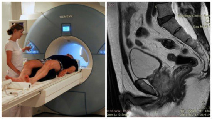 МРТ простаты: нюансы проведения исследования и его необходимость