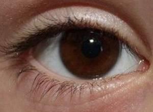 Симптомы неврита зрительного нерва и методы лечения патологии