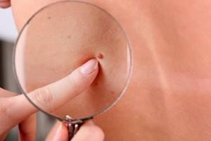 Косвенные признаки вируса папилломы человека и пути заражения