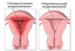 Симптомы и основные методы лечения гиперплазии эндометрия