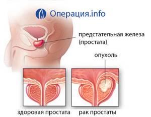 Лапароскопическая простатэктомия: показания и техника проведения