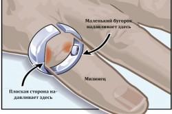 Кольцо от храпа: как правильно использовать приспособление