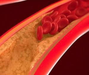 Симптомы газовой гангрены и методы лечения опасного заболевания