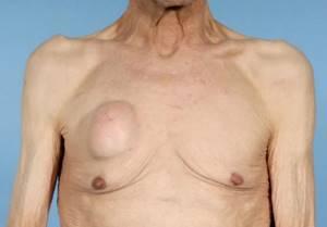 Температура при мастопатии: стоит ли тревожиться в этой ситуации