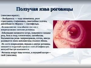 Основные методы лечения кератита вирусного и бактериального типа
