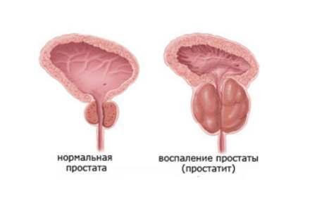 Хронический простатит: классификация и основы лечения болезни