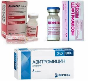 Антибактериальная терапия простатита у мужчин могу ли я иметь детей с простатитом