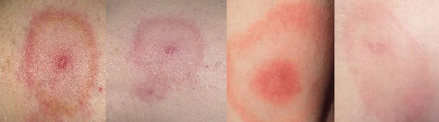 Симптомы клещевого боррелиоза и методы лечения заболевания