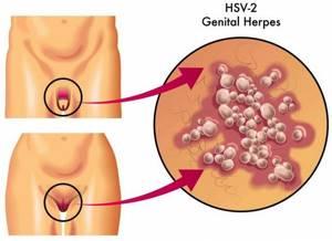 Симптомы генитального герпеса и методы лечения заболевания