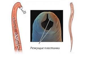 Симптомы анкилостомидоза и профилактика заражения паразитами