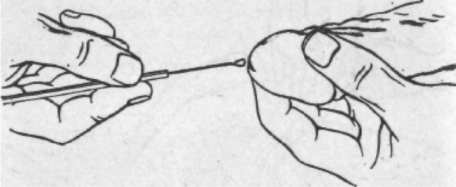 Консультация венеролога: как проводится и в каких случаях нужна