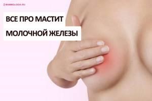 Симптомы мастита и основные подходы к лечению заболевания