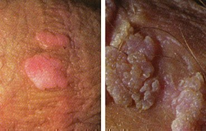 Бородавки у мужчин в паху: симптомы развития и методы лечения