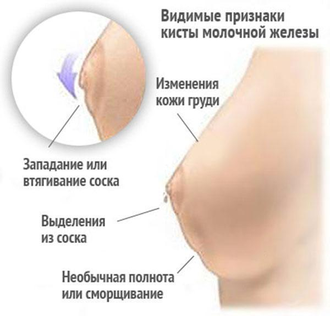 Выделения при мастопатии: повод проконсультироваться с врачом