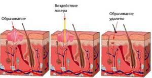 Папилломы на губах: симптомы и методы удаления новообразований