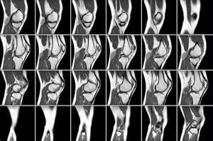 Показания к магнитно-резонансной томографии коленного сустава