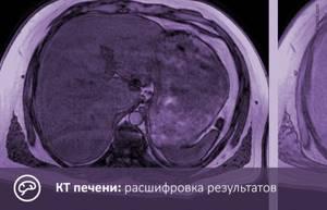 Основные показания к проведению компьютерной томографии печени