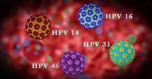 Папилломавирус у женщин: причины возникновения и возможная профилактика