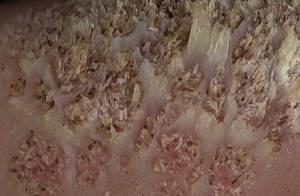 Бородавка почернела после чистотела: причины и методы терапии
