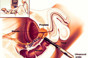 Расшифровка результатов УЗИ предстательной железы: принятые нормы