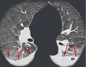 Показания для проведения компьютерной томографии грудной клетки