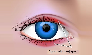 Лечение блефарита и профилактика развития заболевания глаз