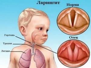 Когда следует применять Флуимуцил от кашля взрослым и детям