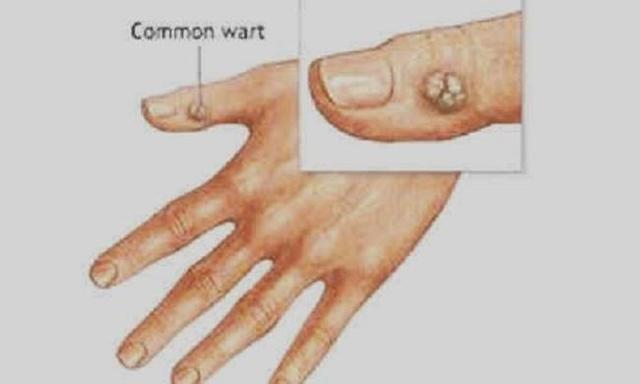 Папилломы на руках: методы диагностики и лечения наростов