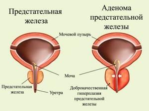 Симптоматика и лечение аденомы простаты