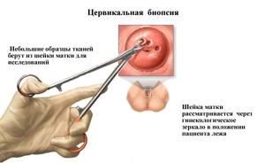 ВПЧ генотипирование: особенности и варианты проведения с пояснением