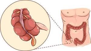 Как определить аппендицит дома и тактика при наличии симптомов
