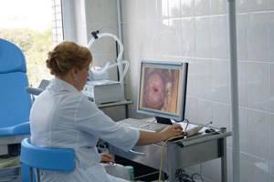 На лобке бородавки: причины развития и методы лечения наростов