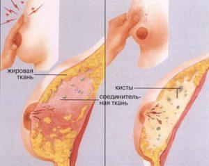 Симптомы и основные методы лечения фиброзно-кистозной мастопатии