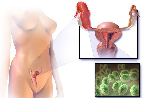 Бородавки на половых органах: диагностика и терапия патологии