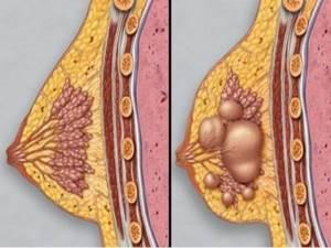 Лечение мастопатии: максимально эффективно, просто и быстро