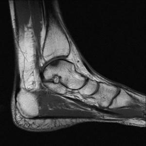 Показания к проведению МРТ стопы и голеностопного сустава