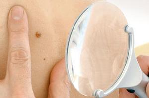 Себорейная бородавка: симптомы и способы лечения наростов