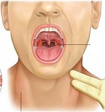 Симптомы вируса Эпштейн-Барра и методы лечения заболевания