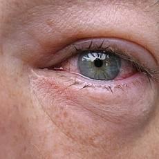Лечение аллергического кашля и профилактика развития осложнений