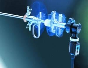 Как проводится гистероскопия и при каких болезнях назначается