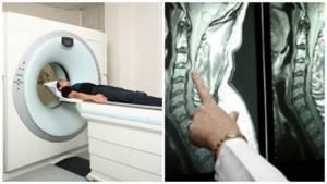 Подготовка и проведение компьютерной томографии гортани и шеи