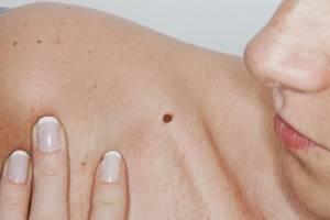 Бородавки на теле: виды новообразований и способы лечения