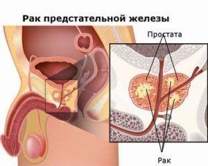 Аденома и рак простаты: каковы симптомы и отличительные признаки