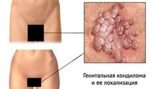 Инкубационный период ВПЧ и способы его передачи с осложнениями