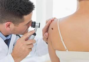 Внутридермальный папилломатозный невус: симптомы и лечение