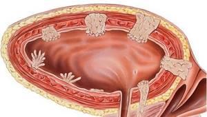 Папиллома мочевого пузыря у мужчины: диагностика и лечение