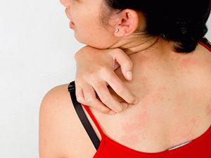Ацикловир от бородавок: инструкция и противопоказания к препарату